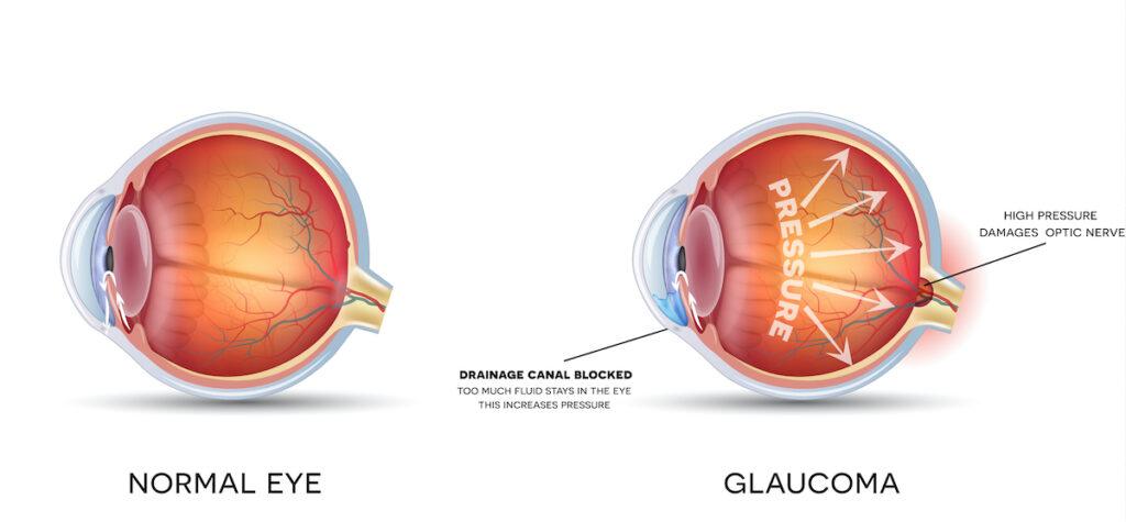 Normal Eye vs Glaucoma Eye